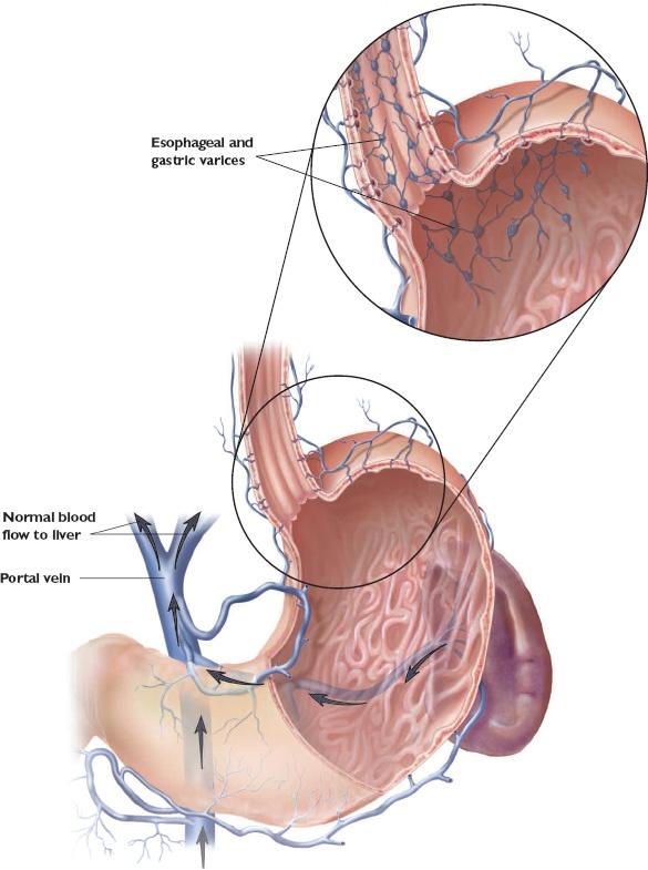 emergency u2014bleeding esophageal varices  what nurses need to know