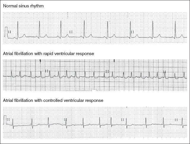 Figure 1. Normal Sinus Rhythm and Two Types of Atrial Fibrillation. Images courtesy of ECGGuru.com.